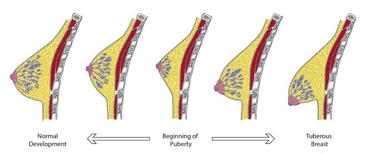 Autonoomse neuropaatia ja kaalulangus on kondimine hea slim alla reie