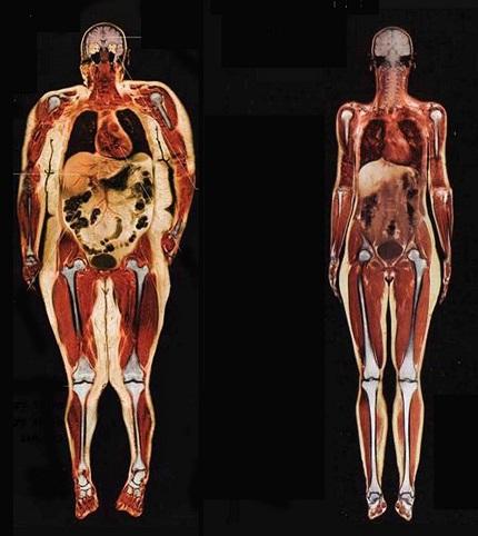 Kuidas poletada rasva ilma lihaste kaotuseta