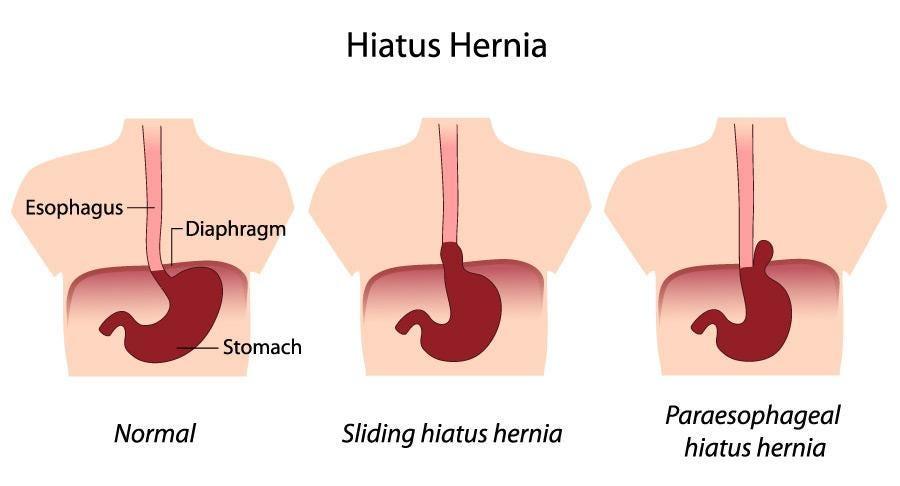 Kas kaalulangus Cure Hiaal Hernia R1 Lean 5 kaalulangus