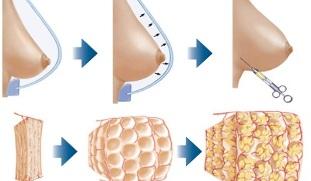Parim protseduur rasva eemaldamiseks jalgadest Les Millite rasva kadu