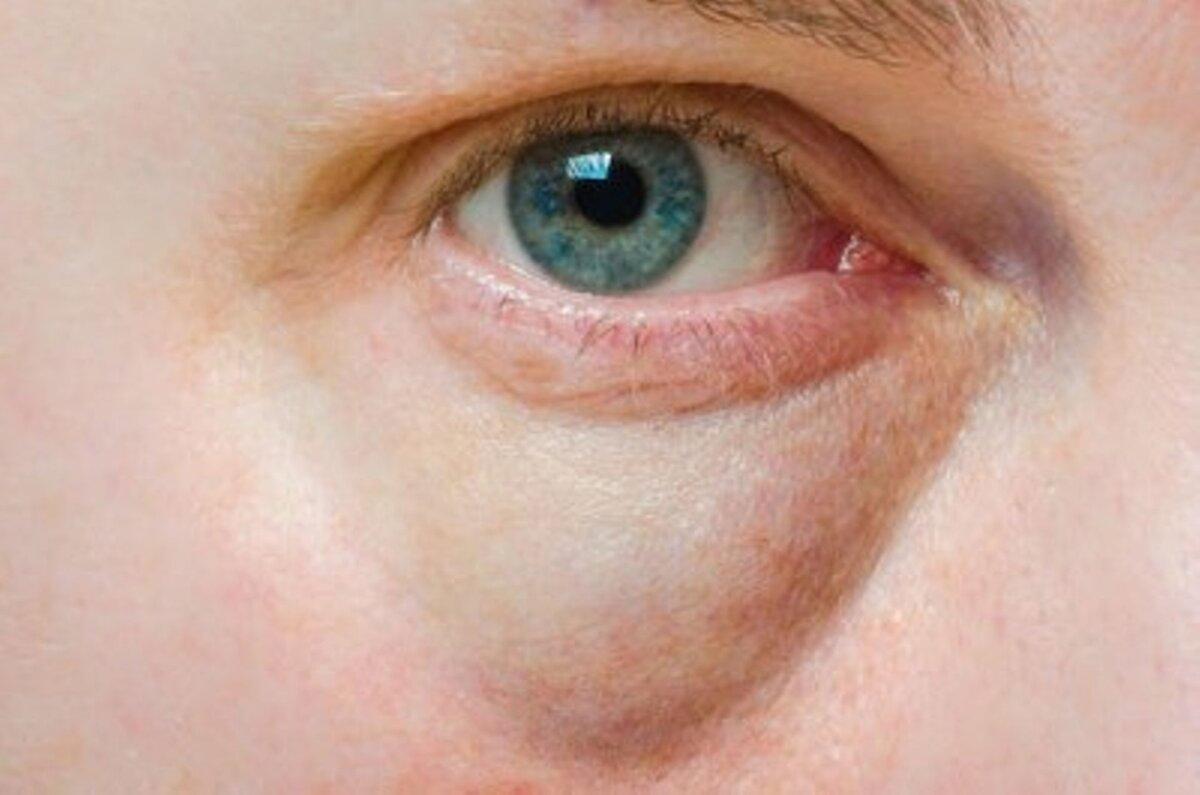 Kuidas eemaldada rasvapallid silmade all