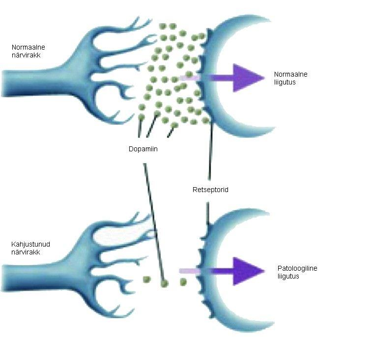 Kaalulangus Parkinsoni tottu