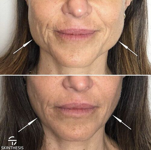 Facial Sleimming Botoxi ulevaade Kaalulangus 72 tunni jooksul