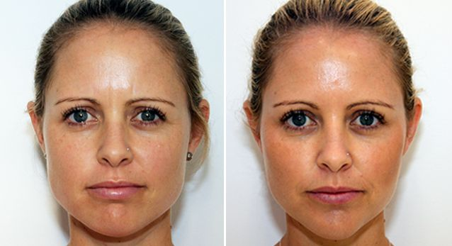 Facial Sleimming Botoxi ulevaade Wally Lewise kaalulangus
