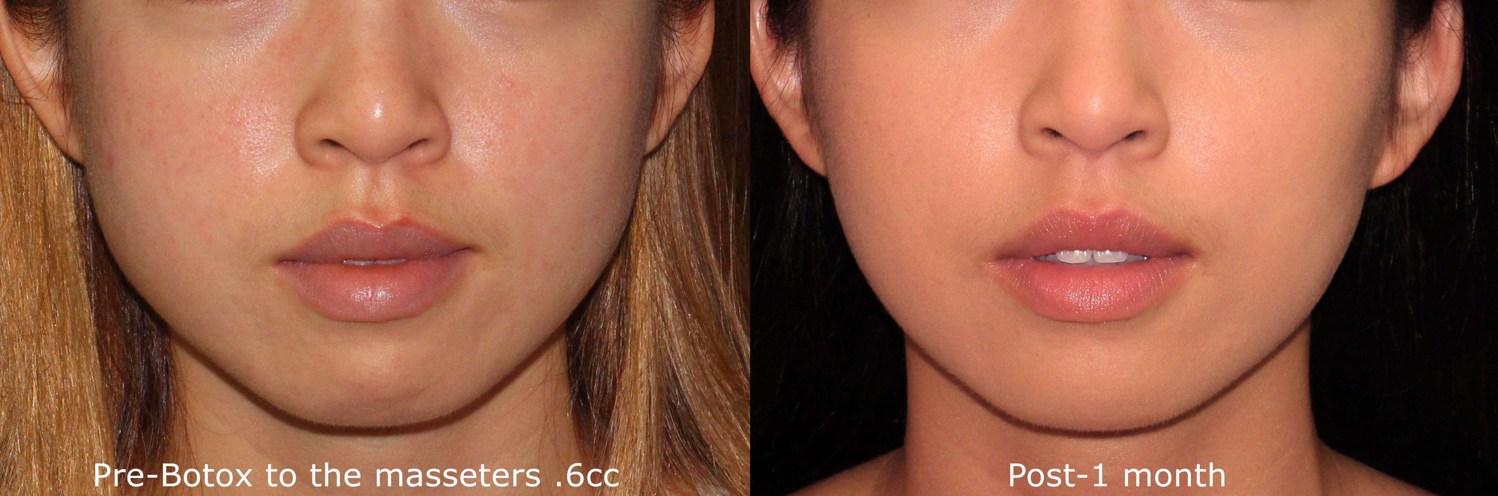 Facial Sleimming Botoxi ulevaade Awesome kaalulangus sooki