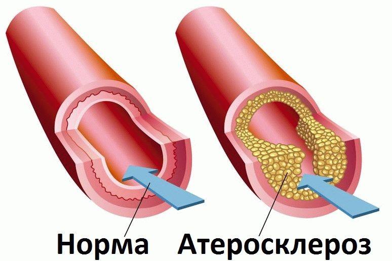 Kas rasva madalama kolesterooli poletamine Mis on moned head rasva poletavad toidud