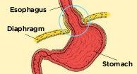 toiduained, mis lagunevad keha rasva alla 85 LBS Kaalulangus