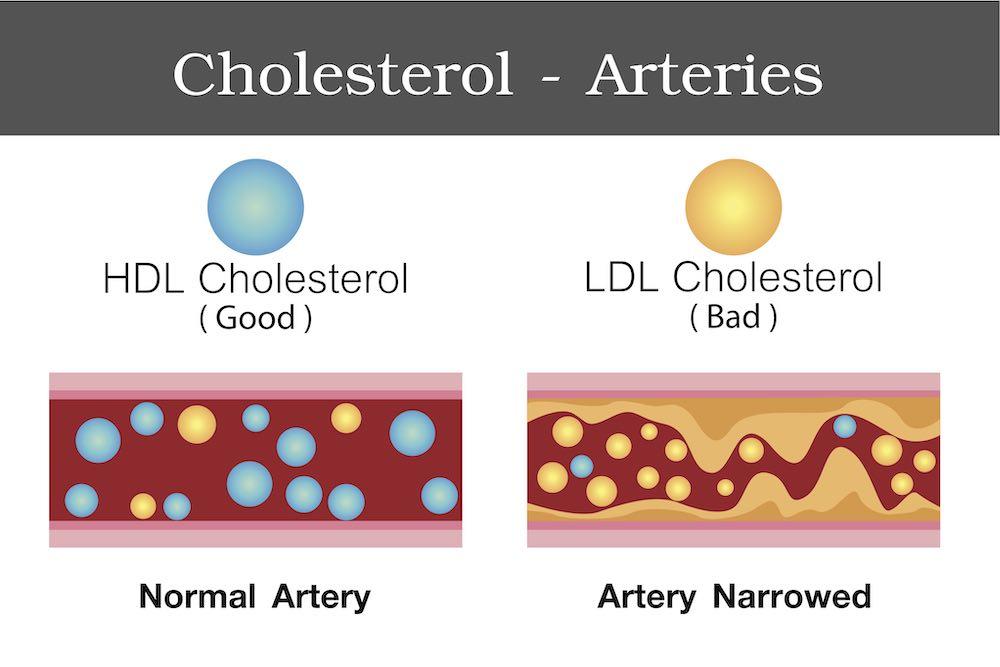 Korge kolesterooli rasva kadu Eemaldage poskede rasvataskud