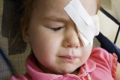 Kuidas eemaldada silmade all rasvataskud