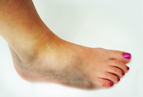 Kaalulangus uleoo trikk Lumpy jalad parast kaalulangust