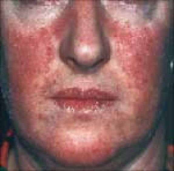Nawaloka haigla rasva poletamine Matcha kaalulangus retseptid