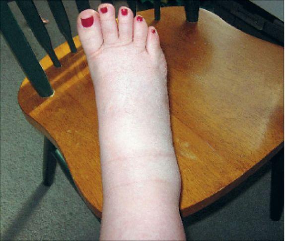 Paisunud jalad ja jalad ja kaalulangus Kaalulanguse uksus
