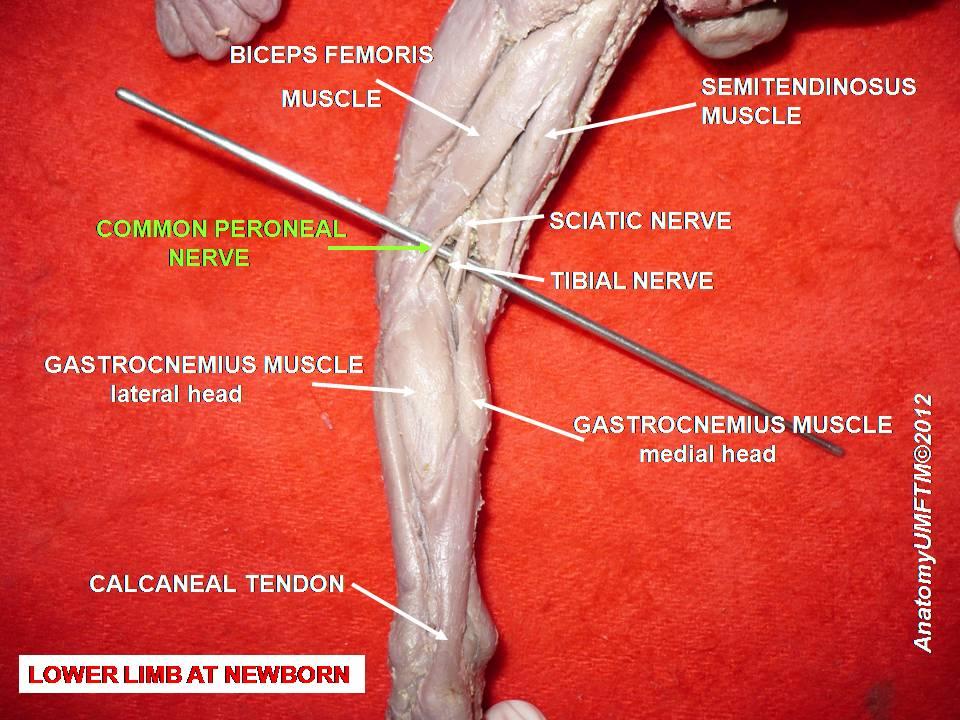 peroneaalne neuropaatia ja kaalulangus Kaalulangus nahaprobleemid