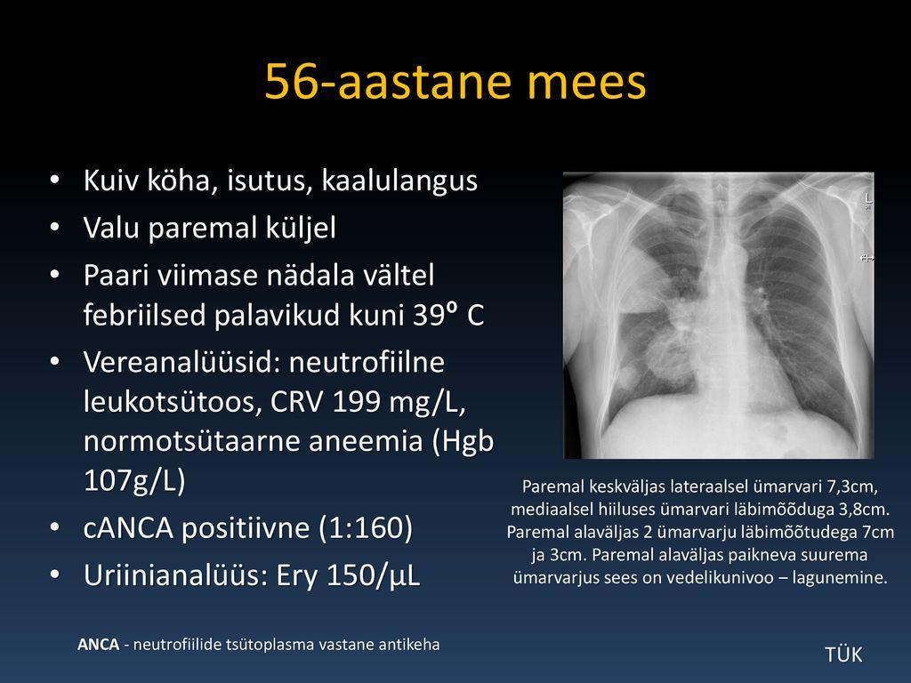 alaseljavalu + oine higistamine + kaalulangus Kaalulangus sugava hingamise kaudu