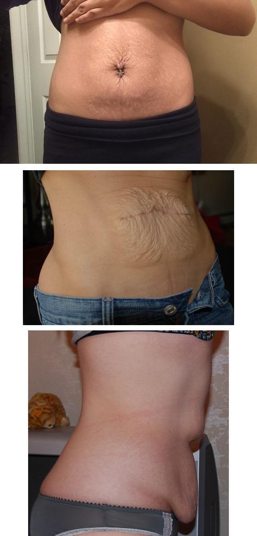 Kaalulangus 5kg kuus